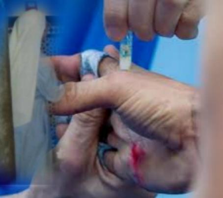 manos heridas sierva